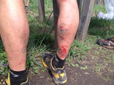 Jared Campbell ferito